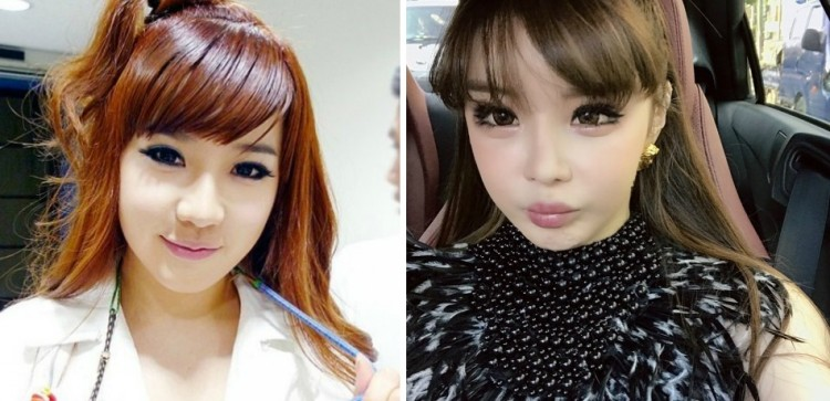 Image result for park bom 2ne1 plastic surgery
